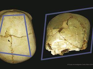 Encuentran en Atapuerca el cráneo de un niño discapacitado