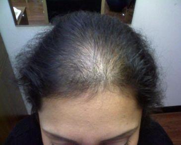 Las vitaminas de la caída de los cabello más eficaz