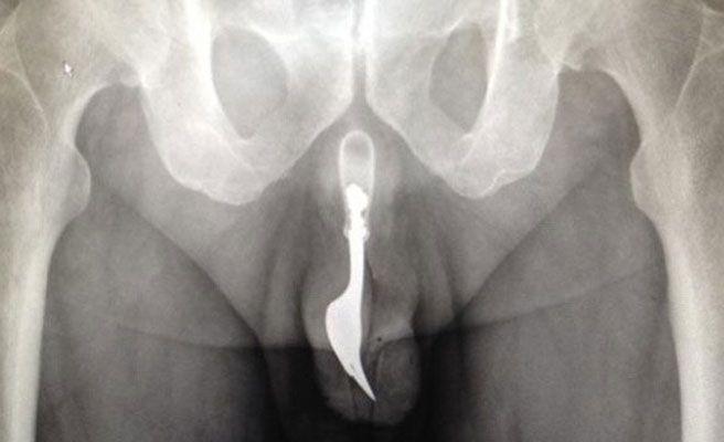 Hospitalizado un hombre en Australia con un tenedor metido en el pene