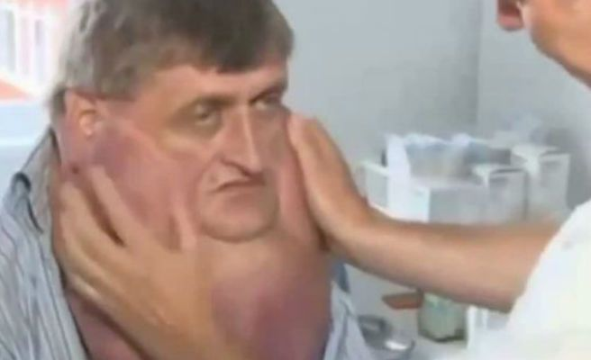 Le extirpan un tumor de trece kilos de su cara