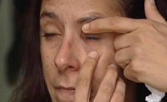 Confunde el pegamento con el bote de gotas para los ojos