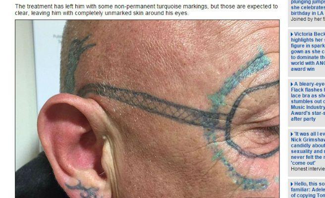 Le tatúan unas gafas en la cara cuando se recuperaba de una resaca
