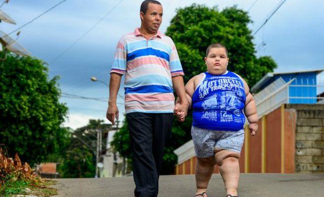Misael, el niño que con cinco años pesa 81 kilos