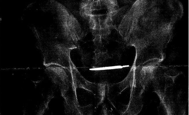 Demanden a un metge que va oblidar el seu bisturí al inmterior del pacient al qual operava