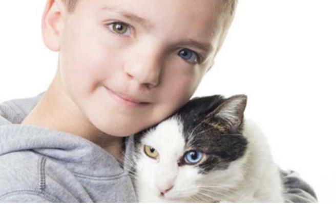 Un niño y un gato comparten rasgos físicos sorprendentes