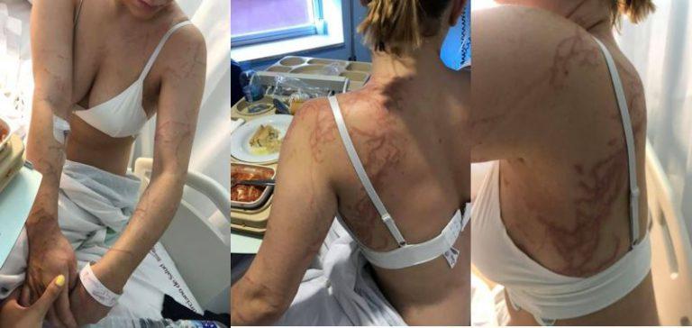 Ingresada tras la picadura de una carabela portuguesa en Murcia