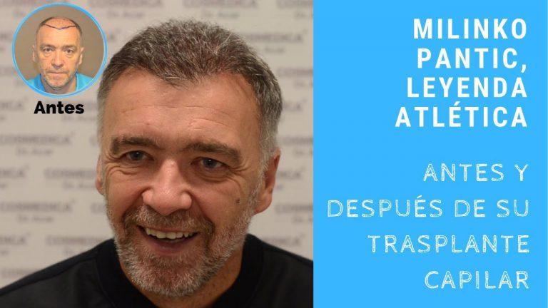 Milinko Pantic, el más apasionado supporter de MicroFue Cosmédica, centro médico de referencia mundial en trasplante capilar