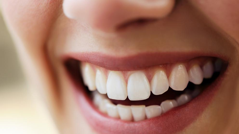 dientes-encias