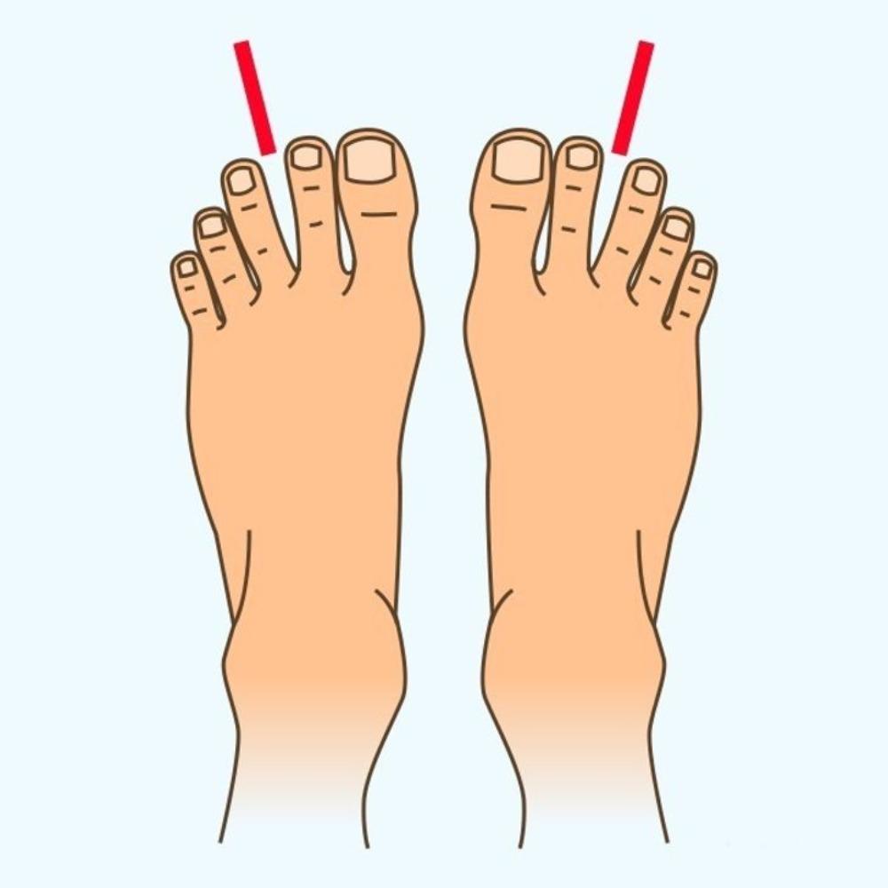 espacio entre los dedos de los pies