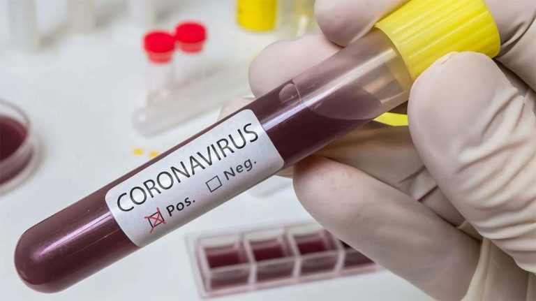 Sanidad registra 9.437 nuevos casos de Covid-19 y eleva la cifra global de fallecidos a los 30.004