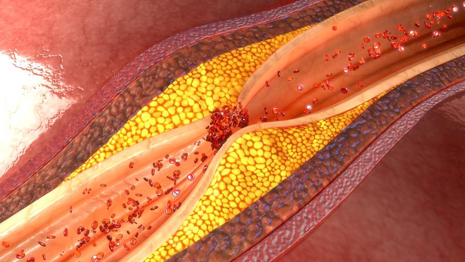 Qué es la dislipidemia