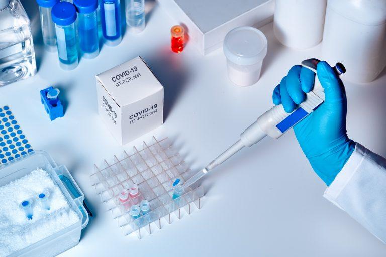¿Qué es un PCR y qué cuesta hacerlo?