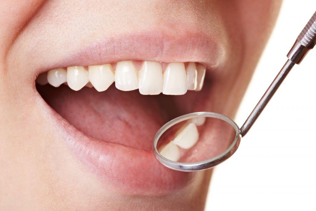 placa en los dientes