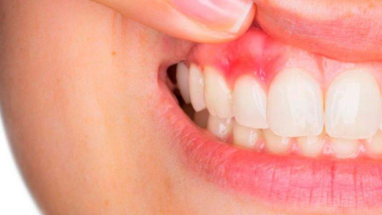 Estos son los problemas de salud que tendrás si no te lavas los dientes