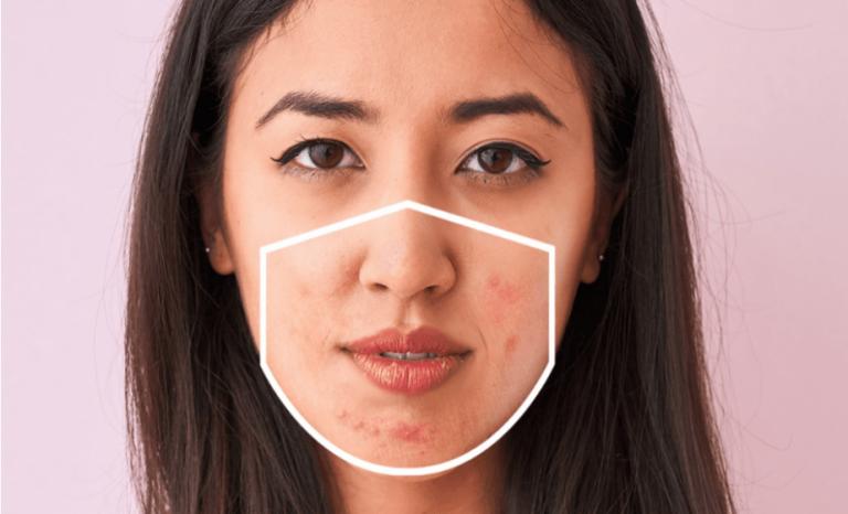 Cómo tratar el 'maskné', el acné de las mascarillas
