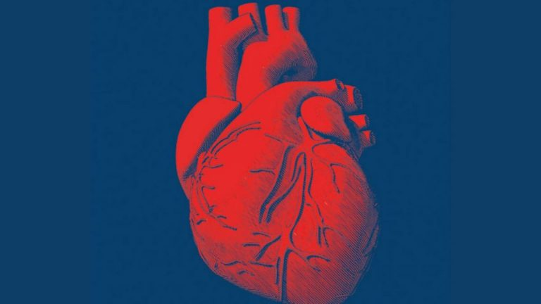 Cómo saber si te está dando un infarto
