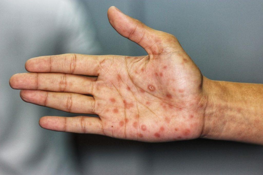 Sífilis, clamidia... las enfermedades de transmisión sexual más chungas