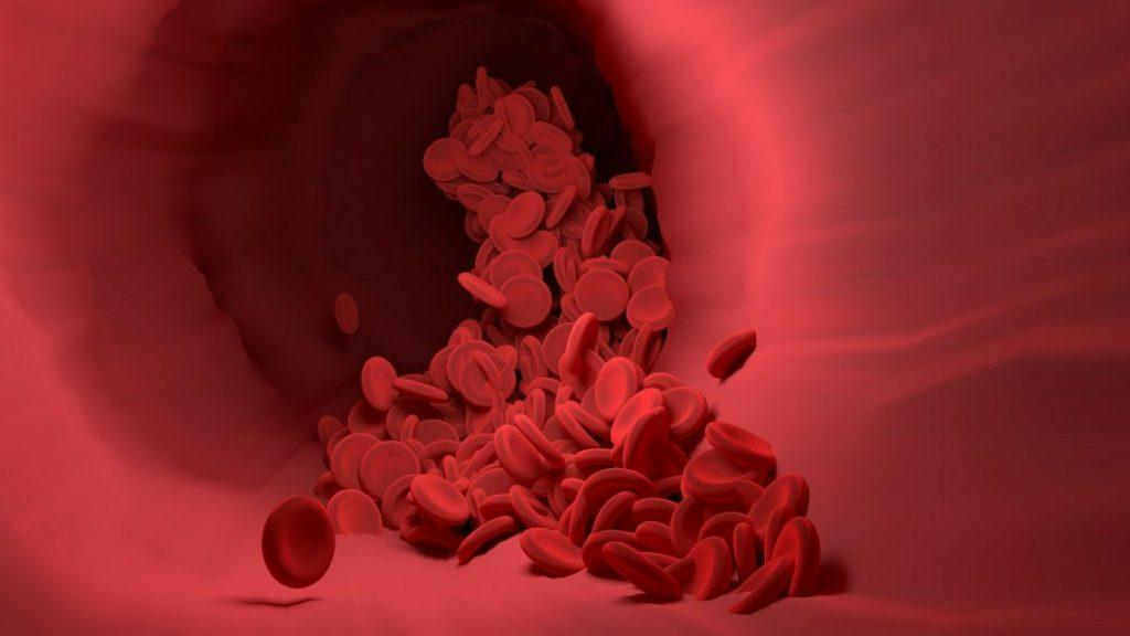 Problemas en el torrente sanguíneo por los chupetones