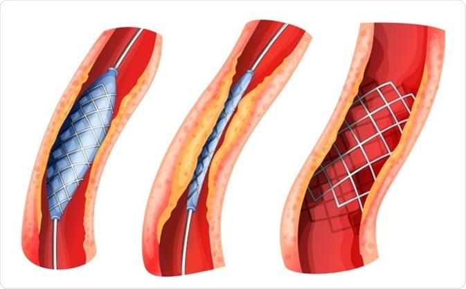 Cómo se implanta un stent