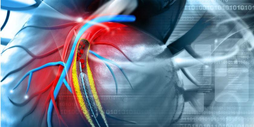 Cómo es el proceso para desobstruir la arteria