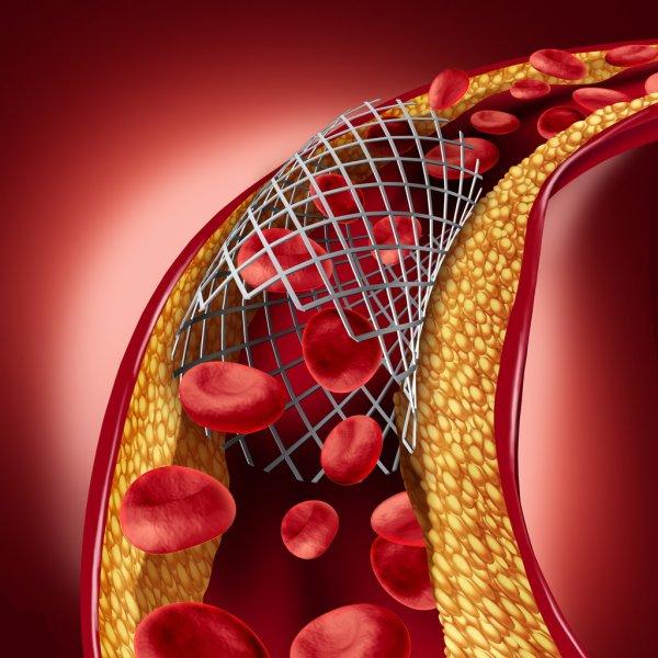 Concretamente que controles son necesarios como pacientes con Stent coronario