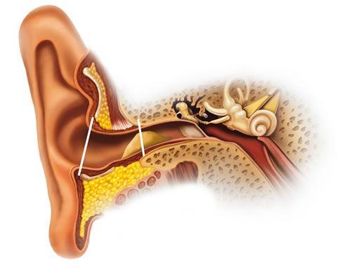 ¿Qué ocasiona la formación de tapones en los oídos?