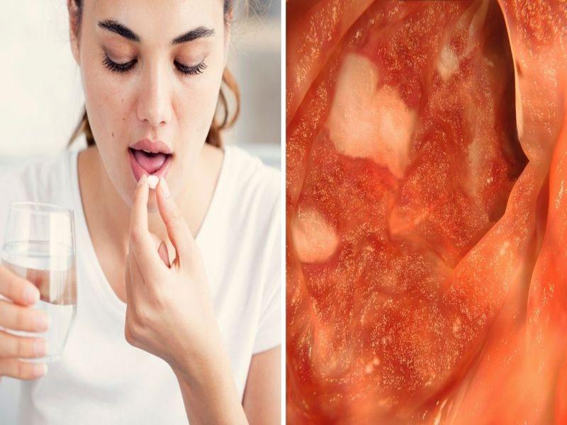 efectos secundario del antibiótico