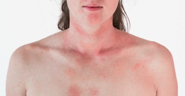 Intoxicación por vía cutánea