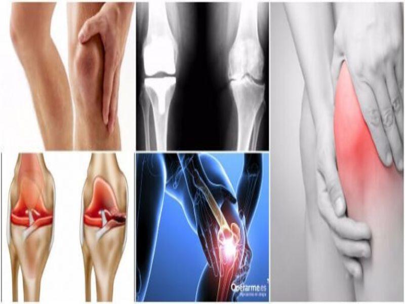 origen de la artrosis