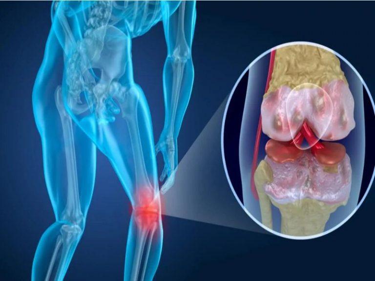 Qué es la artrosis
