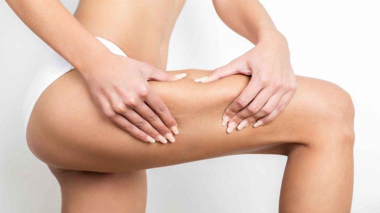 Celulitis: cremas imprescindibles de marca que acaban con ella en un santiamén