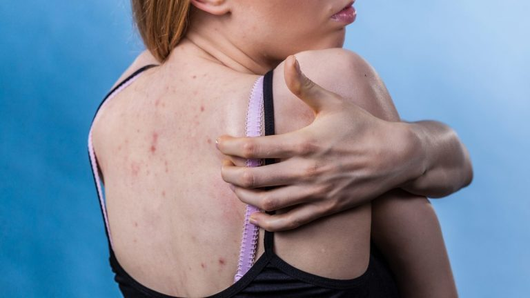Cómo quitar la picazón del cuerpo: remedios caseros que funcionan