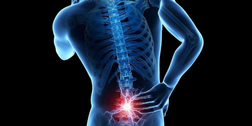 ¿Cuáles son los síntomas del Lumbago?