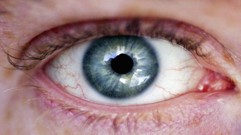 Cómo quitarte un cuerpo extraño del ojo