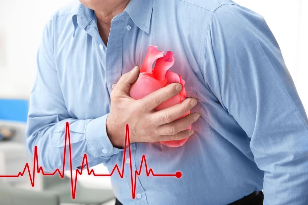 Qué es un infarto de microcardio