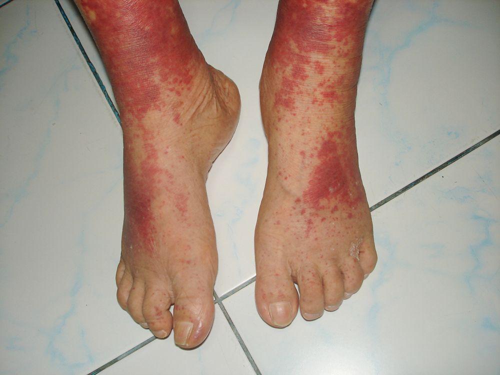 Síntomas de la vasculitis según el tipo