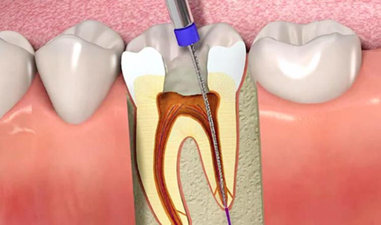 pulpar dental