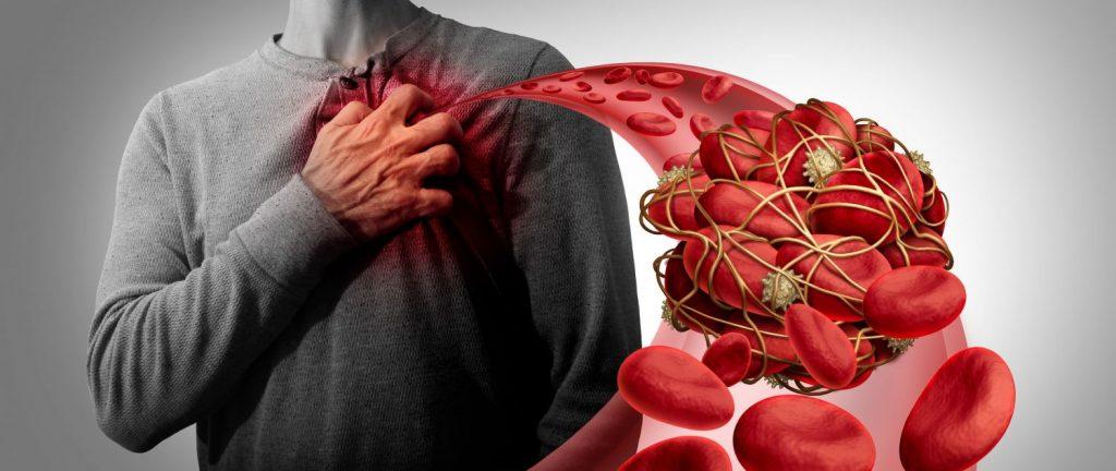 causas de una embolia pulmonar