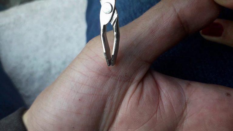 Cómo quitarse una astilla: métodos para sacarla fácilmente