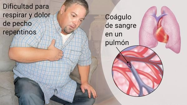 síntomas de una embolia pulmonar