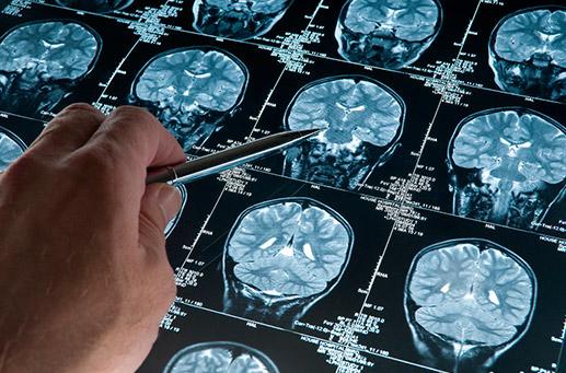 Origen de los trastornos neurológicos