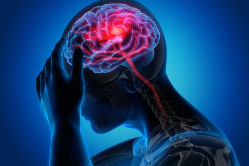 Síntomas de los trastornos neurológicos