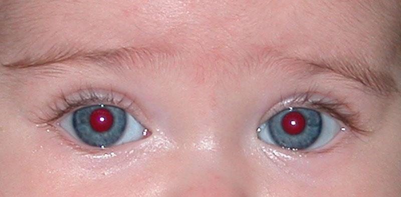 Ojos grises con las pupilas rojas.