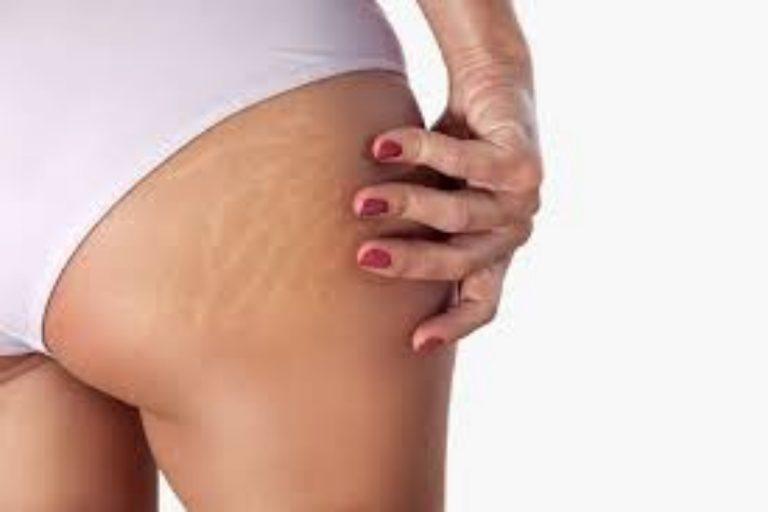 Cómo deshacerte de las estrías blancas de tu piel