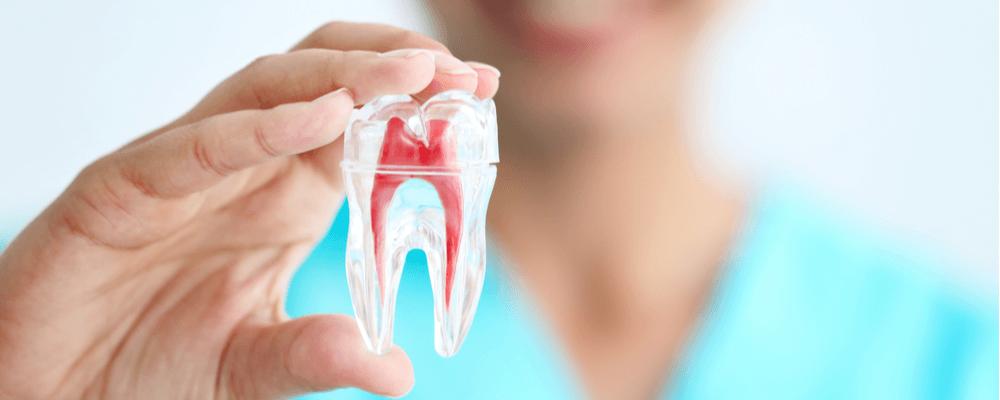 preguntas frecuentes de la endodoncia