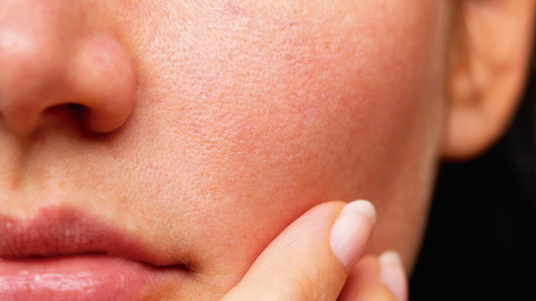 Cómo tener una piel hidratada si la tienes seca