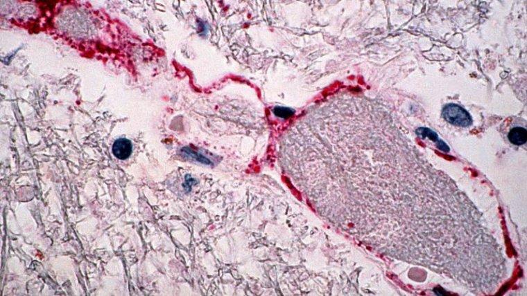 Tipos de infecciones
