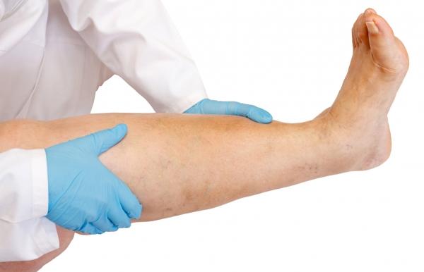 Prevención de la flebitis