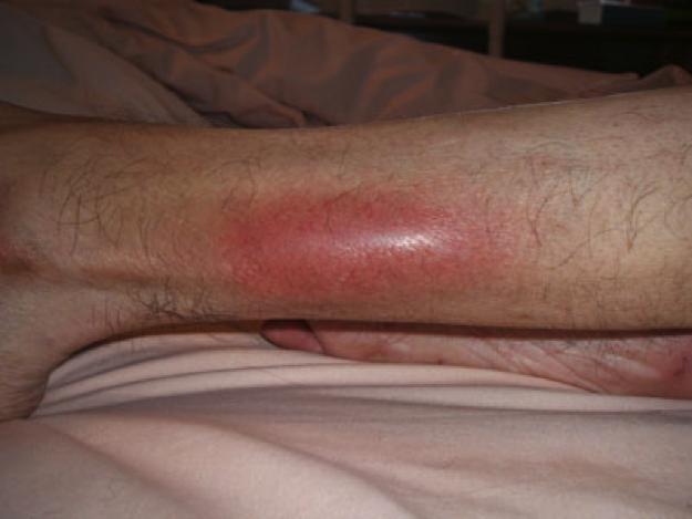 Flebitis Bacteriana