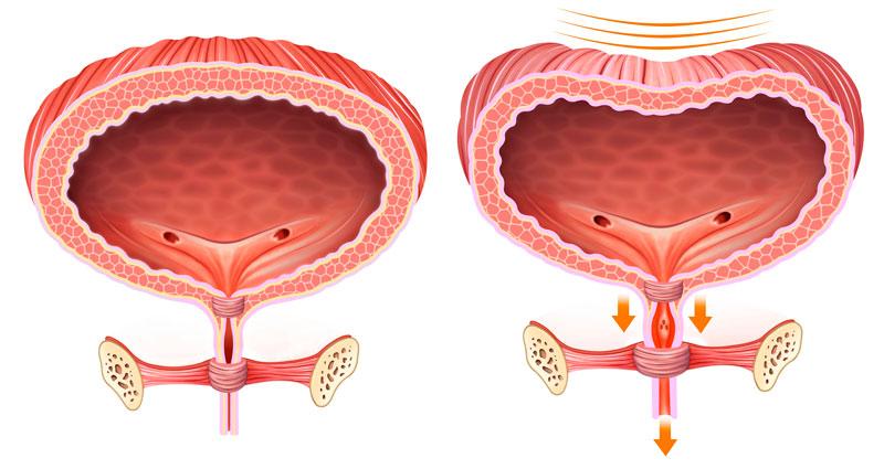 Cirugía del Suelo Pélvico